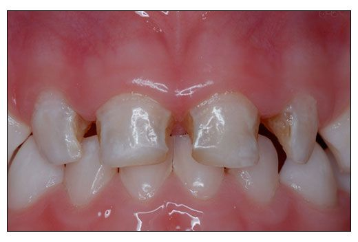 New Pathogen Linked To Severe Early Childhood Tooth Decay